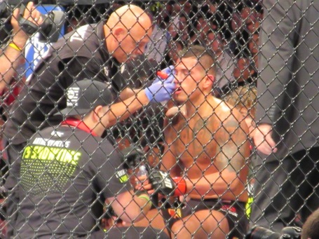 A battered Anthony Pettis in between rounds at UFC 185.